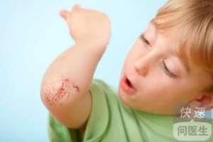 宝宝癫痫能看好吗  癫痫疾病的治疗方法